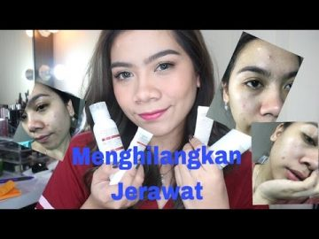 Review Elsheskin Acne Treatment Series | Jihan Putri